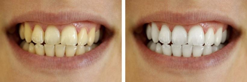 Отбеливание зубов в Стоматология МС