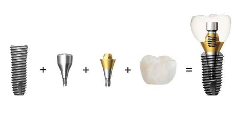 Имплантаты Dentium